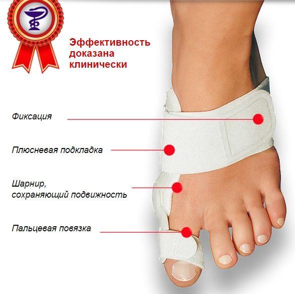 Как вылечит косточки на ноге в домашних условиях
